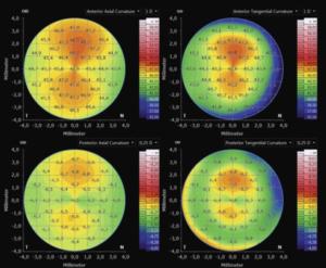 Exemple de cartographie codée couleurs pour interpréter la tomographie cornéenne.