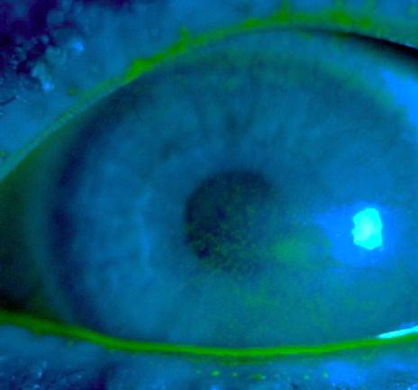 Kératite induite par une sécheresse oculaire