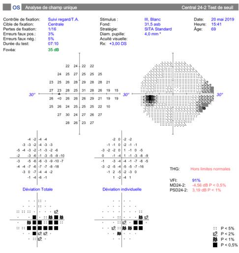 Champ visuel anormal dans le cadre d'un glaucome