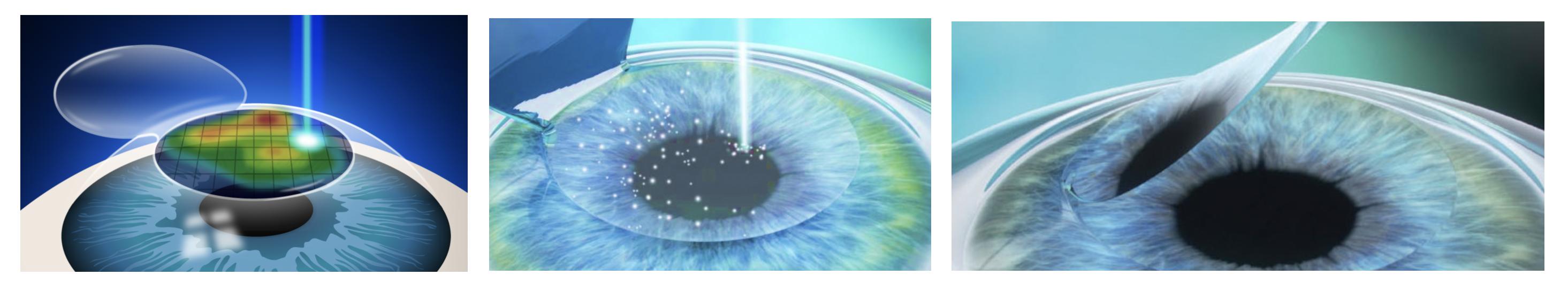 Le SMILE ou «Small incision lenticule extraction» c'est la technique la plus récente utilisée depuis 2004 où le volume tissulaire n'est plus pulvérisé à l'aide du laser EXCIMER mais retiré physiquement sous la forme d'un petit lenticule intra-stromal réalisé par un laser femtoseconde. Ce laser va donc créer une solution de continuité antérieure et postérieure, le lenticule ainsi créé a un volume correspondant à l'amétropie à traiter, (à l'heure actuelle seulement la myopie et l'astigmatisme sont susceptibles d'être corrigés par cette technique), et est retiré manuellement par l'opérateur par le biais d'une petite incision, elle aussi réalisée au laser femtoseconde. Cette technique est aussi réservée aux cornées «parfaites», avec une bonne épaisseur initiale, sans asymétrie, sans défaut biomécanique.