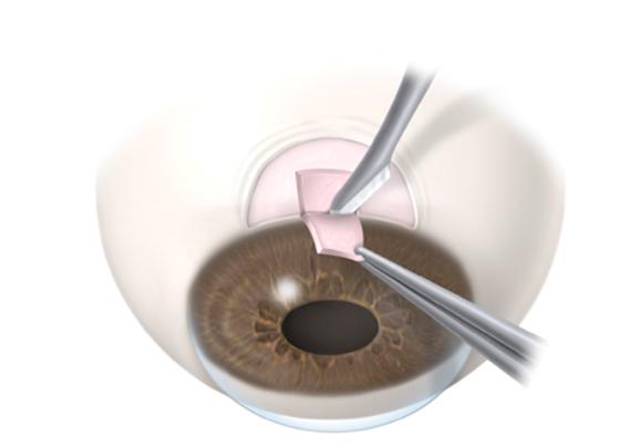 Chirurgie filtrante classique