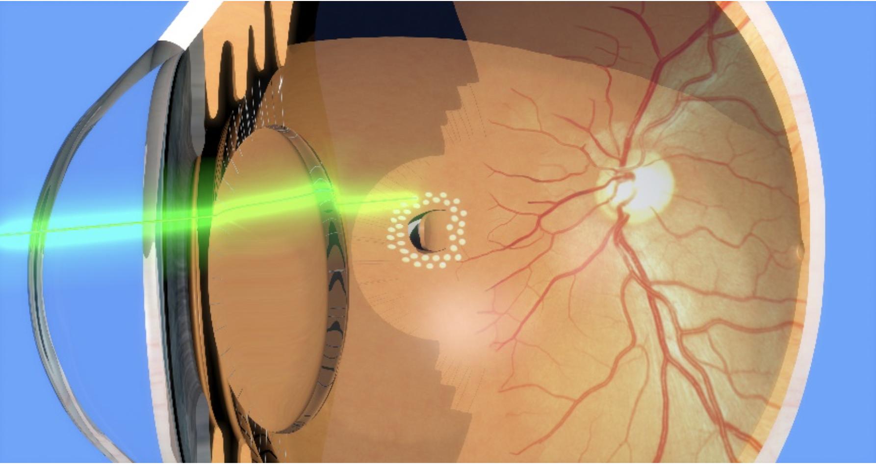 Photocoagulation d'une déchirure rétinienne au laser