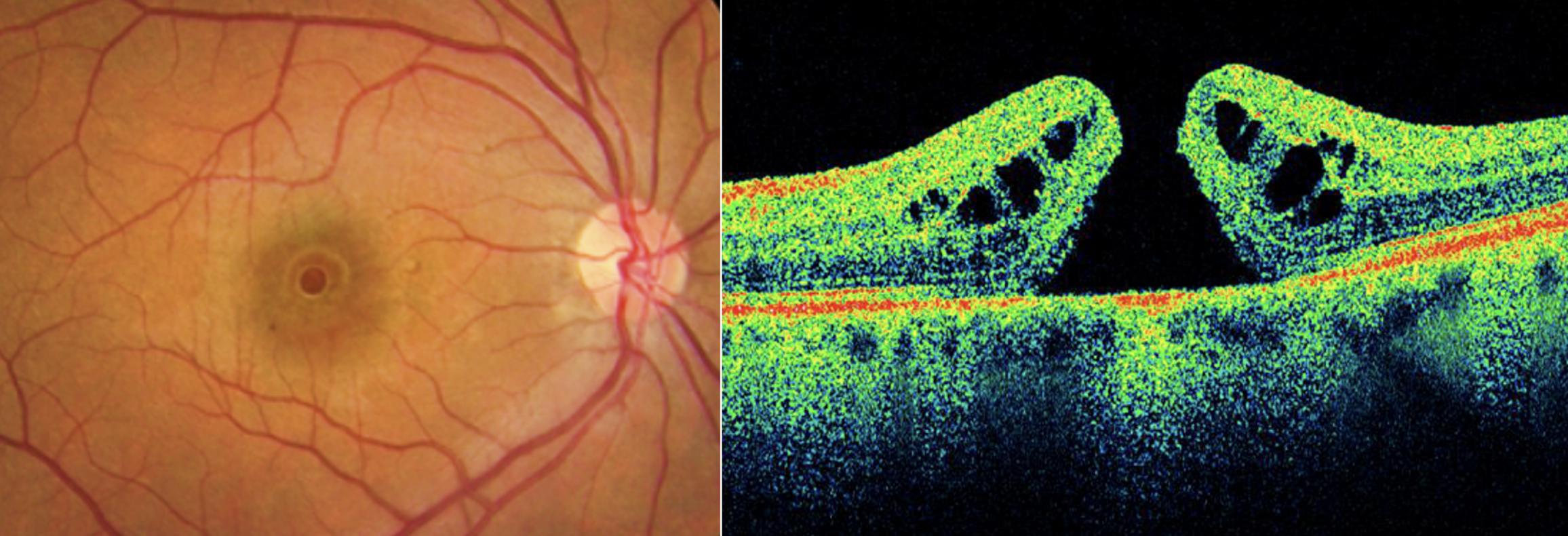 Rétinophotographie et OCT d'un trou maculaire idiopathique
