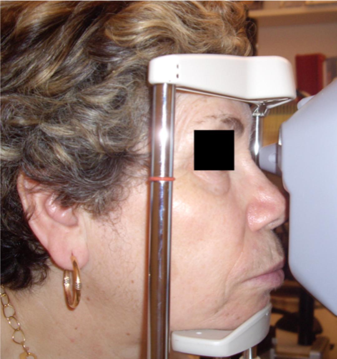 Mesure de la pression intra-oculaire