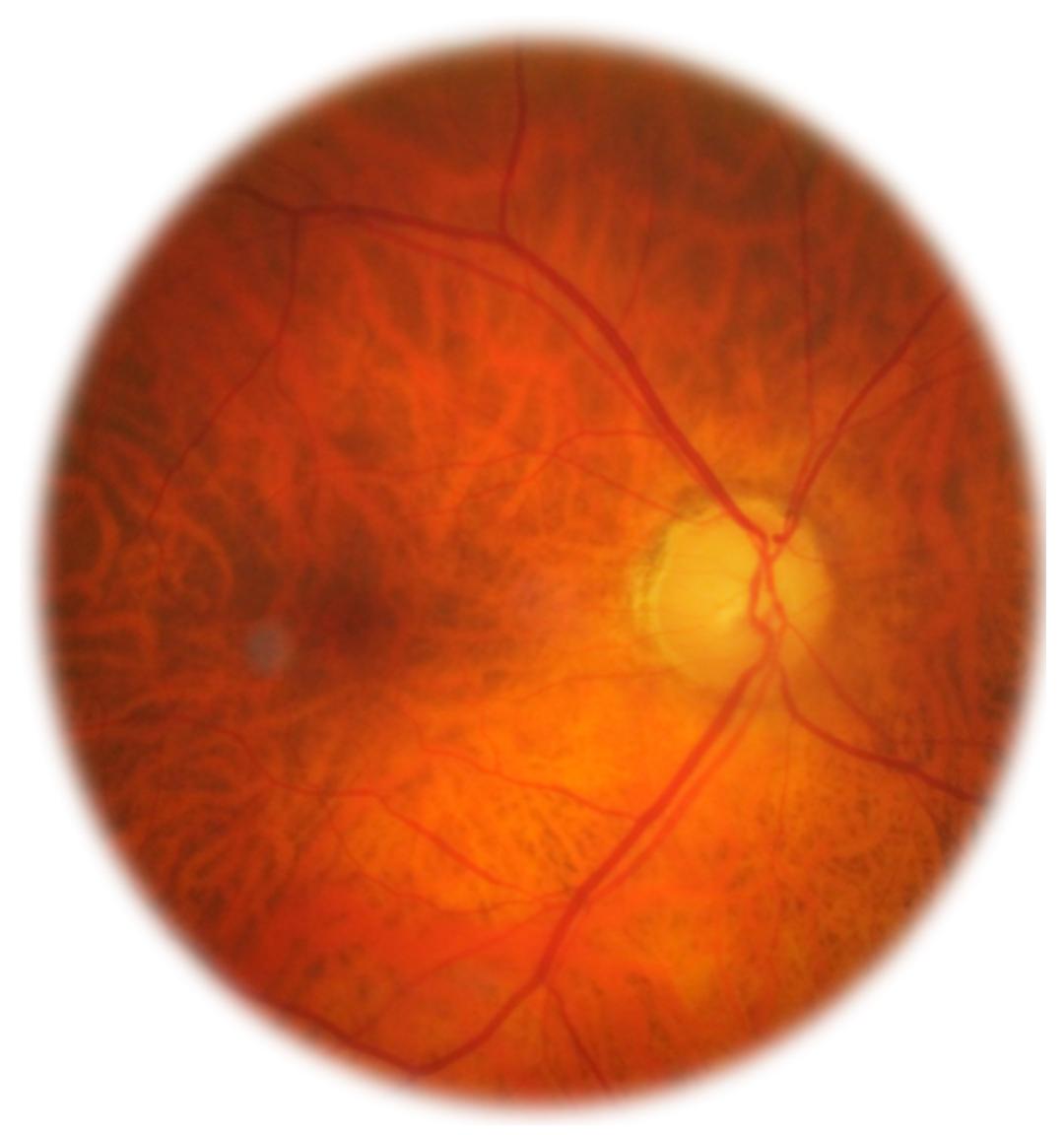 Analyse du nerf optique au fond d'oeil